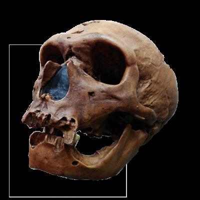 Cráneo de Neanderthal I